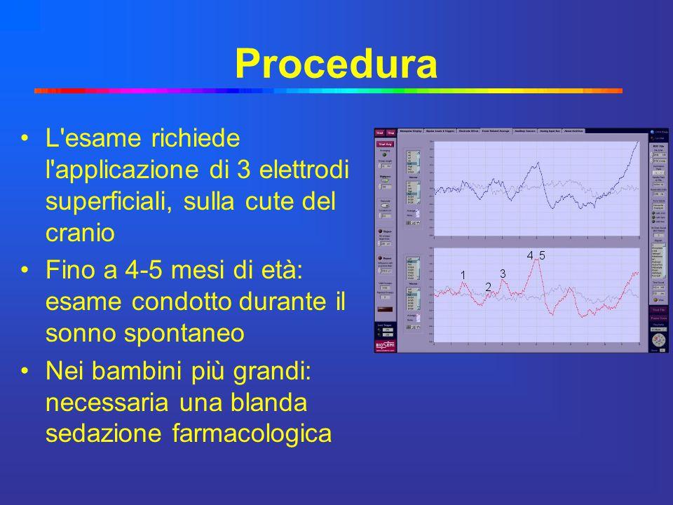 Procedura L'esame richiede l'applicazione di 3 elettrodi superficiali, sulla cute del cranio Fino a 4-5 mesi di età: esame condotto durante il sonno s