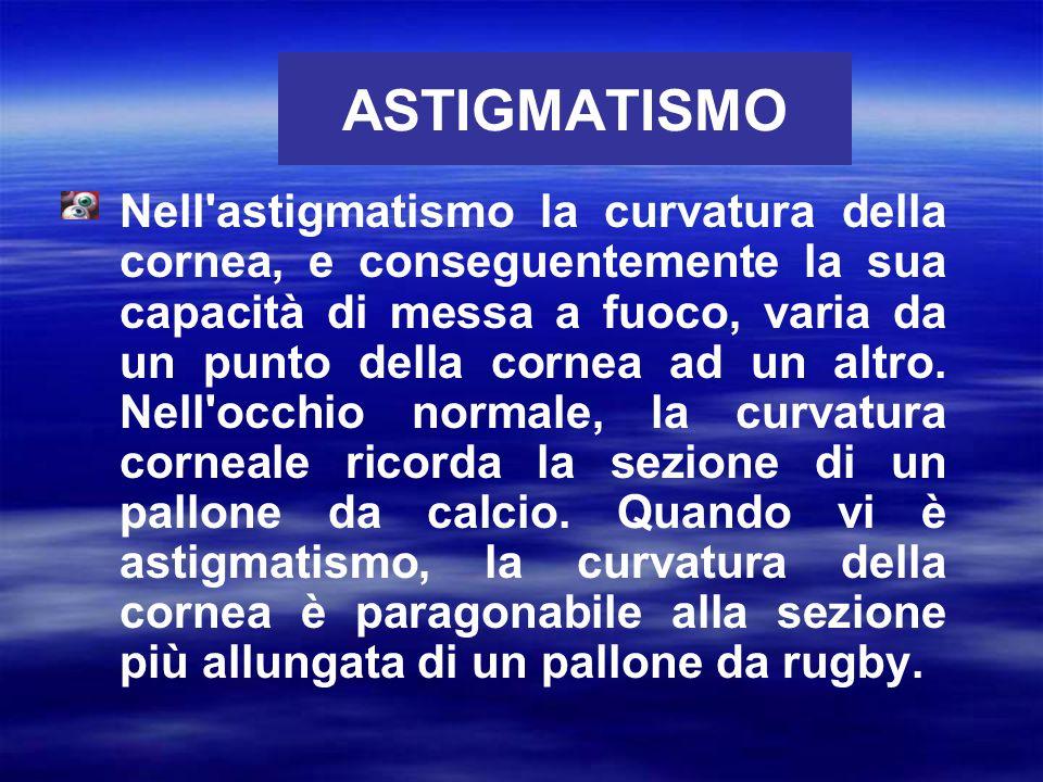 ASTIGMATISMO Nell'astigmatismo la curvatura della cornea, e conseguentemente la sua capacità di messa a fuoco, varia da un punto della cornea ad un al