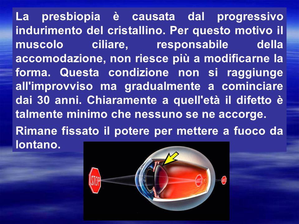 La presbiopia è causata dal progressivo indurimento del cristallino. Per questo motivo il muscolo ciliare, responsabile della accomodazione, non riesc