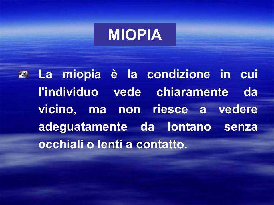 La miopia è la condizione in cui l'individuo vede chiaramente da vicino, ma non riesce a vedere adeguatamente da lontano senza occhiali o lenti a cont