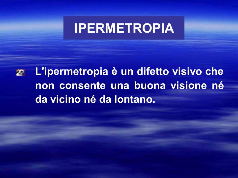 IPERMETROPIA Nell ipermetropia la curvatura della cornea è troppo lieve e ciò provoca la messa a fuoco delle immagini dietro la retina.