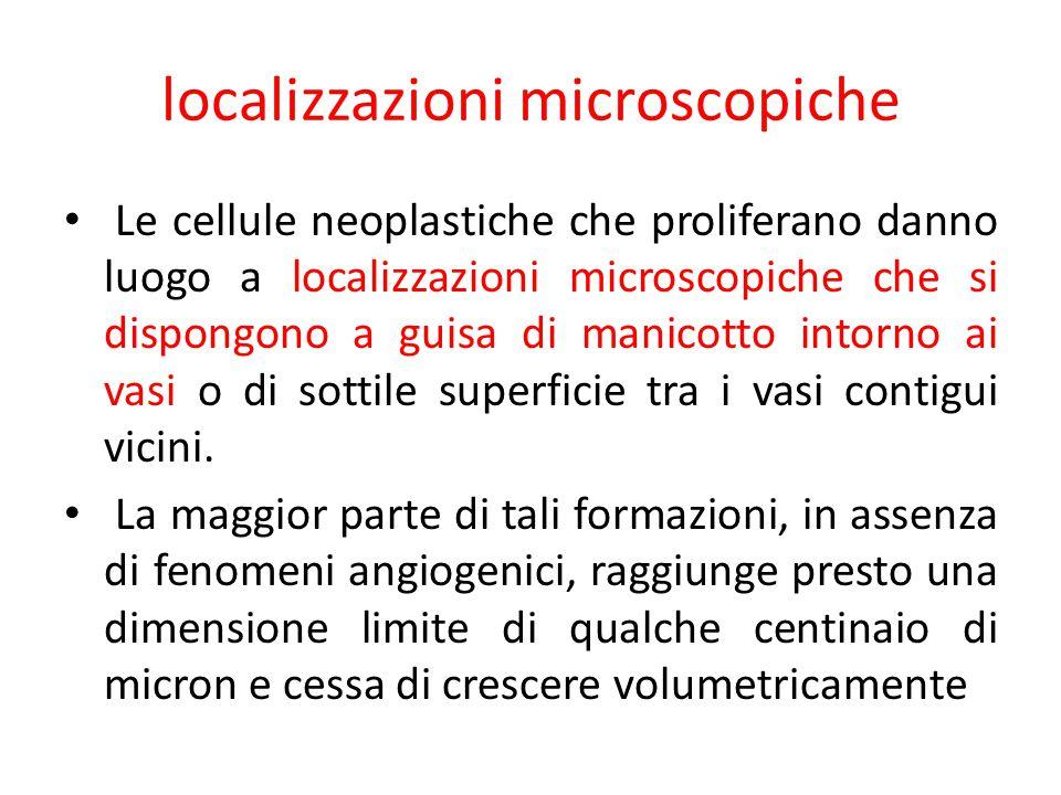 localizzazioni microscopiche Le cellule neoplastiche che proliferano danno luogo a localizzazioni microscopiche che si dispongono a guisa di manicotto