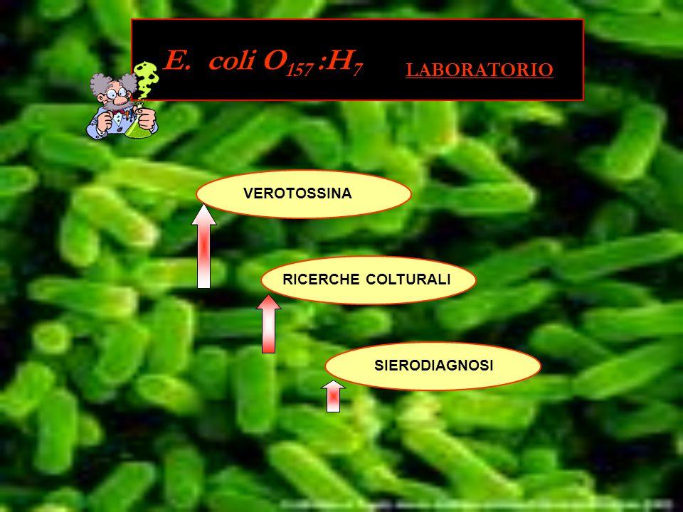 VEROTOSSINA RICERCHE COLTURALI SIERODIAGNOSI E. coli O 157 :H 7 LABORATORIO