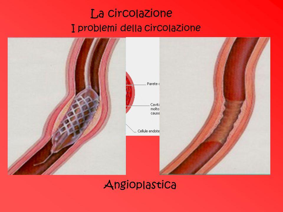Deposito di colesterolo La circolazione I problemi della circolazione Angioplastica