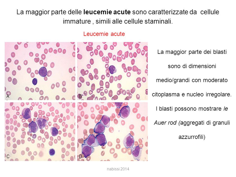 La maggior parte delle leucemie acute sono caratterizzate da cellule immature, simili alle cellule staminali.