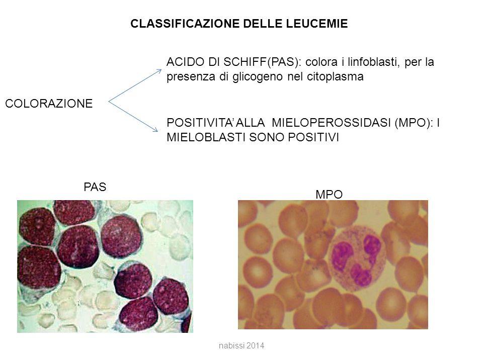 CLASSIFICAZIONE DELLE LEUCEMIE COLORAZIONE ACIDO DI SCHIFF(PAS): colora i linfoblasti, per la presenza di glicogeno nel citoplasma POSITIVITA' ALLA MIELOPEROSSIDASI (MPO): I MIELOBLASTI SONO POSITIVI PAS MPO nabissi 2014