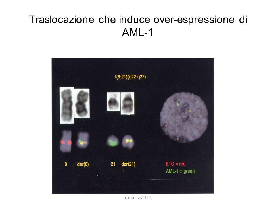 Traslocazione che induce over-espressione di AML-1 nabissi 2014