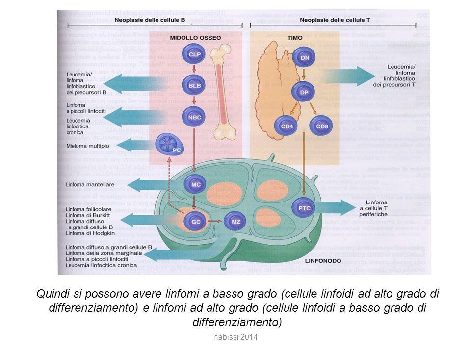 Quindi si possono avere linfomi a basso grado (cellule linfoidi ad alto grado di differenziamento) e linfomi ad alto grado (cellule linfoidi a basso grado di differenziamento) nabissi 2014