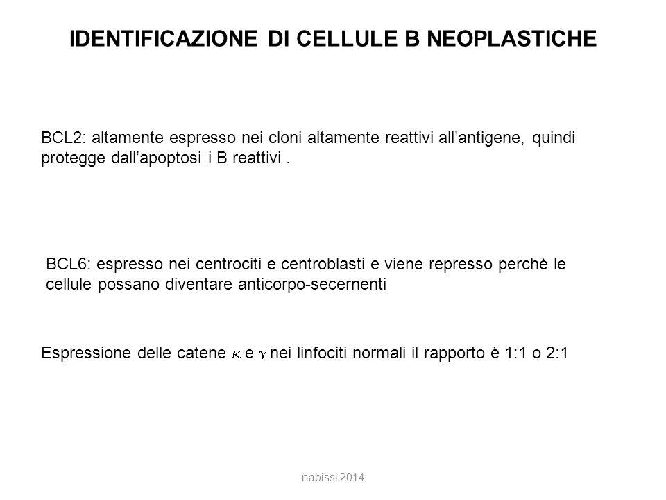 IDENTIFICAZIONE DI CELLULE B NEOPLASTICHE BCL2: altamente espresso nei cloni altamente reattivi all'antigene, quindi protegge dall'apoptosi i B reattivi.
