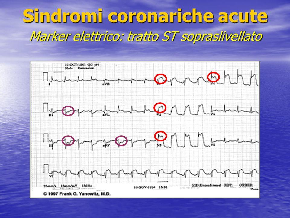 Sindromi coronariche acute Marker elettrico: tratto ST sopraslivellato