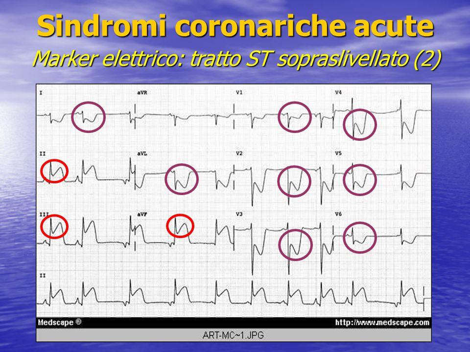 Sindromi coronariche acute Marker elettrico: tratto ST sopraslivellato (2)