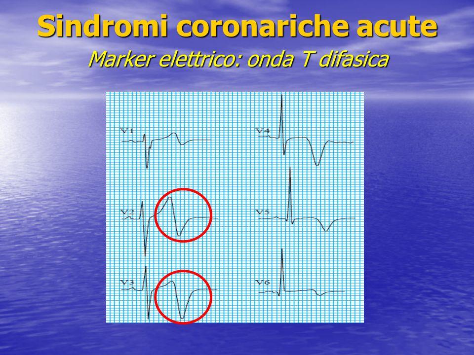 Sindromi coronariche acute Marker elettrico: onda T difasica