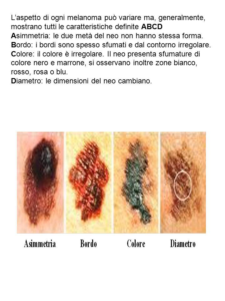 L'aspetto di ogni melanoma può variare ma, generalmente, mostrano tutti le caratteristiche definite ABCD Asimmetria: le due metà del neo non hanno ste