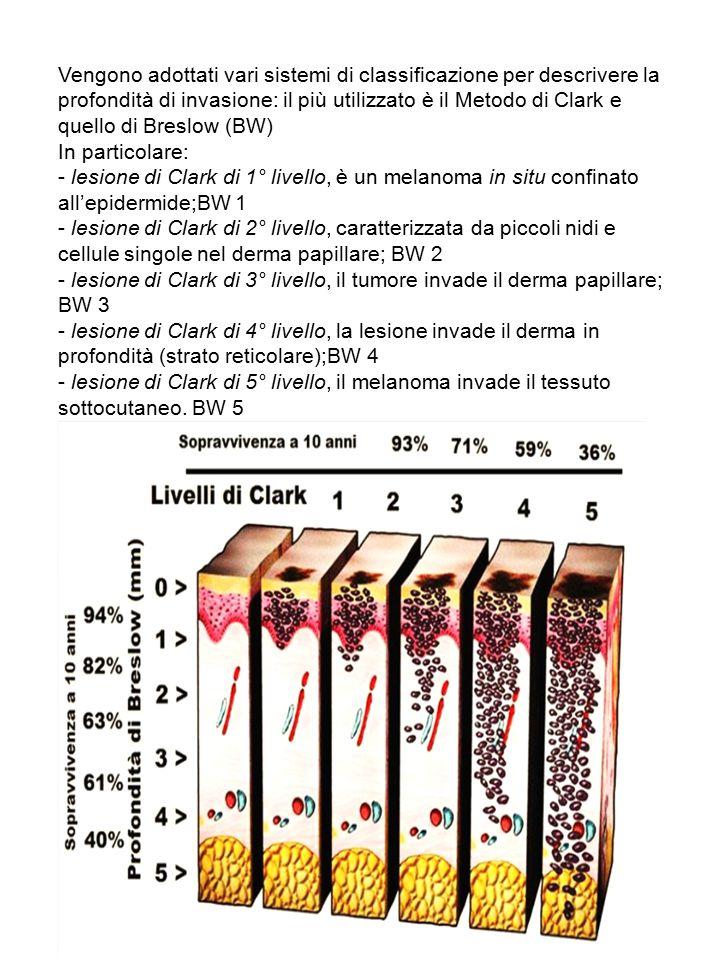 Vengono adottati vari sistemi di classificazione per descrivere la profondità di invasione: il più utilizzato è il Metodo di Clark e quello di Breslow