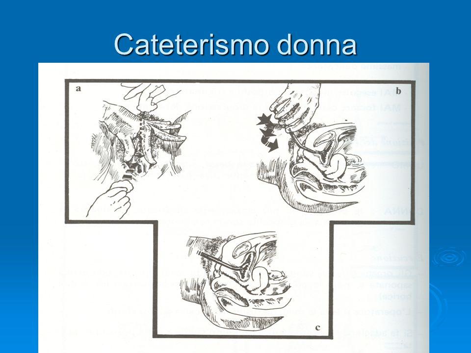 Cateterismo donna
