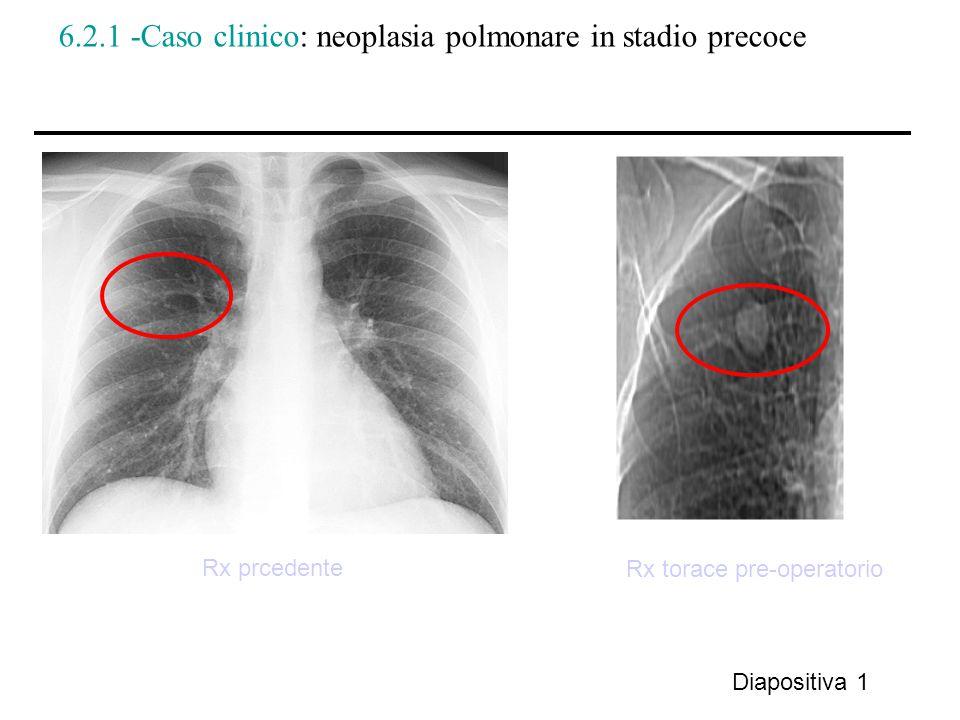 6.2.1 -Caso clinico: neoplasia polmonare in stadio precoce Diapositiva 1 Rx torace pre-operatorio Rx prcedente
