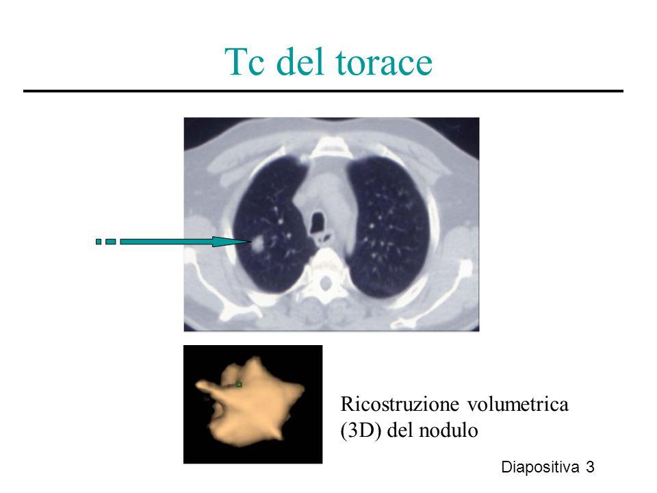 Tc del torace Diapositiva 3 Ricostruzione volumetrica (3D) del nodulo