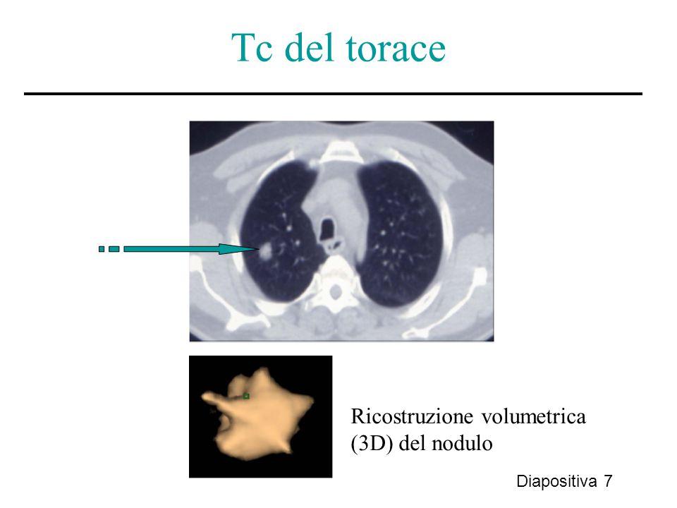Tc del torace Diapositiva 7 Ricostruzione volumetrica (3D) del nodulo