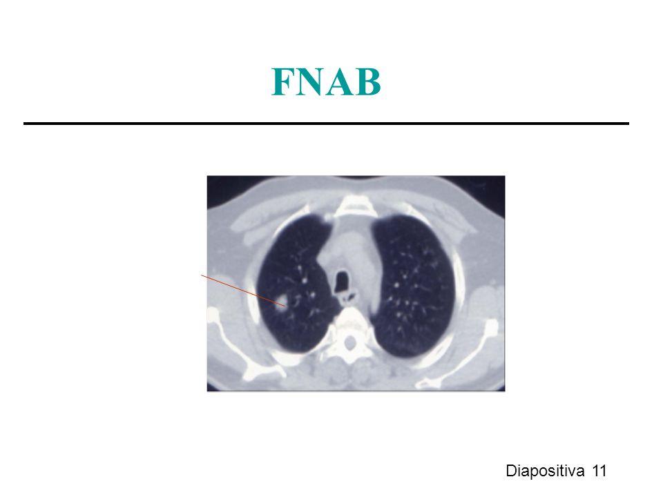 Diapositiva 11 FNAB