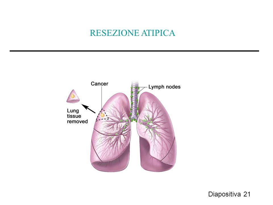 Diapositiva 21 RESEZIONE ATIPICA