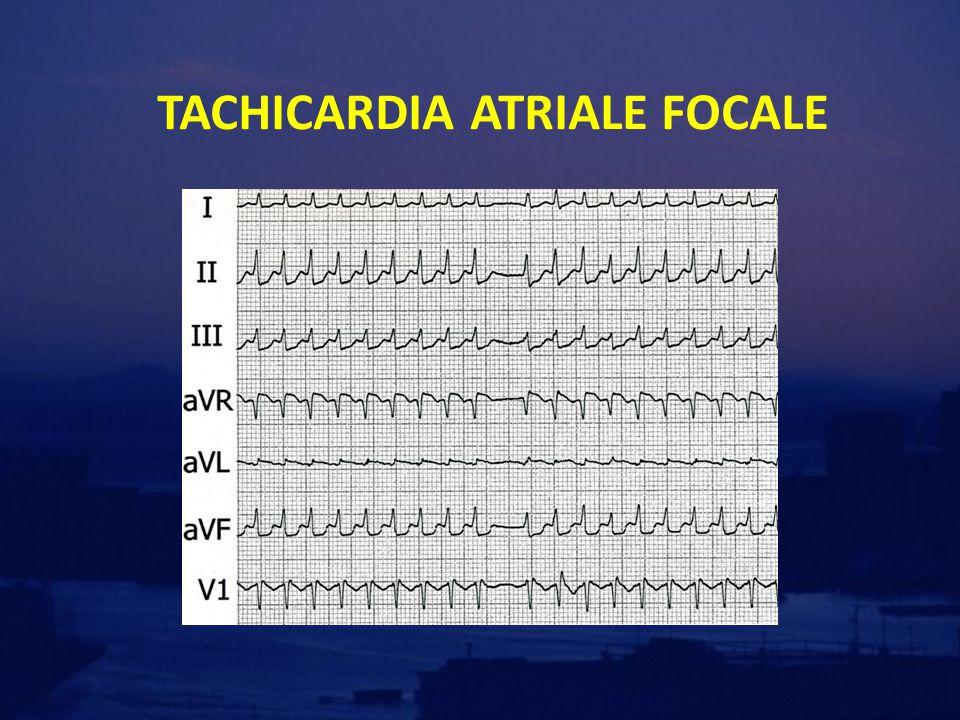 Occorre valutare le caratteristiche ECOgrafiche -Morfologia basale -Diametri atriali e ventricolari -Pericardio -Cinetica regionale e funzione sistolica globale (FE%) -Alterazioni segmentarie  sospettare CAD -Alterazioni diffuse e ridotta FE -Alterazioni valvolari e doppler -Stenosi mitralica e/o aortica -Insufficienza mitralica e/o aortica -PAPs aumentate  TEP