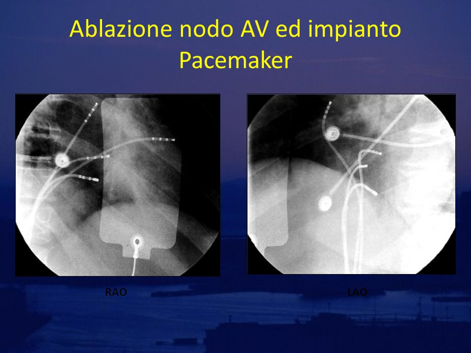 Ablate and pace E' un intervento palliativo che mira a ridurre e regolarizzare la frequenza ventricolare.
