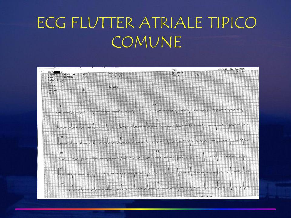 ECG FLUTTER ATRIALE TIPICO COMUNE 3:1 A-V Block Sawtooth pattern