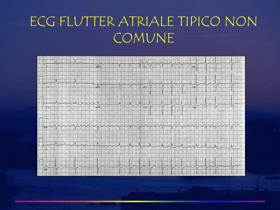 ECG FLUTTER ATRIALE TIPICO NON COMUNE