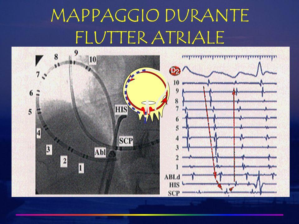 MAPPAGGIO DURANTE FLUTTER ATRIALE