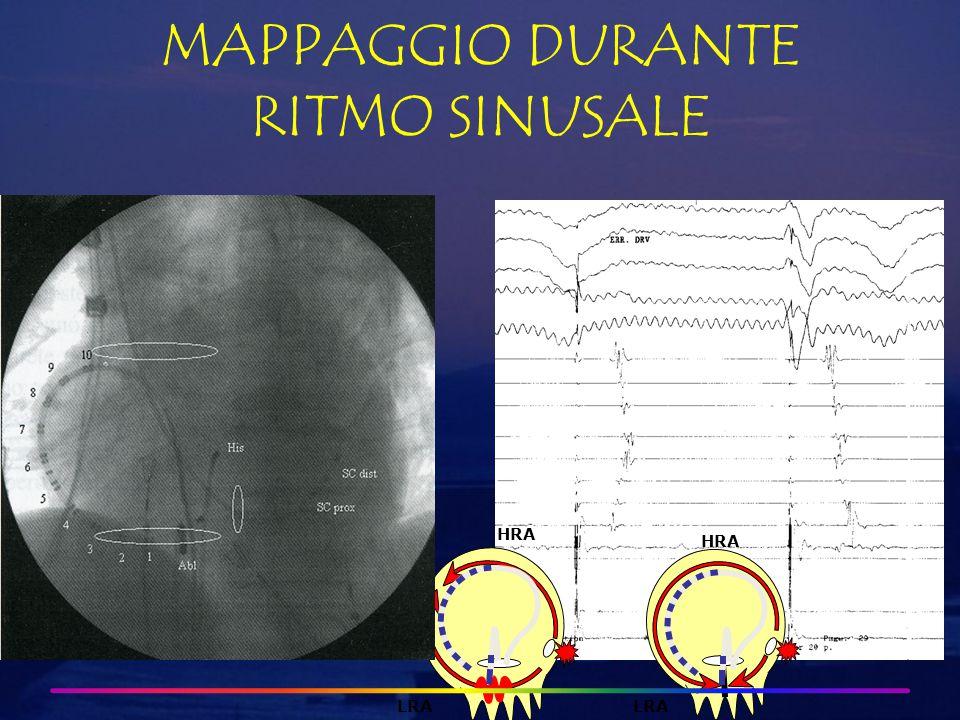HRA LRA MAPPAGGIO DURANTE RITMO SINUSALE