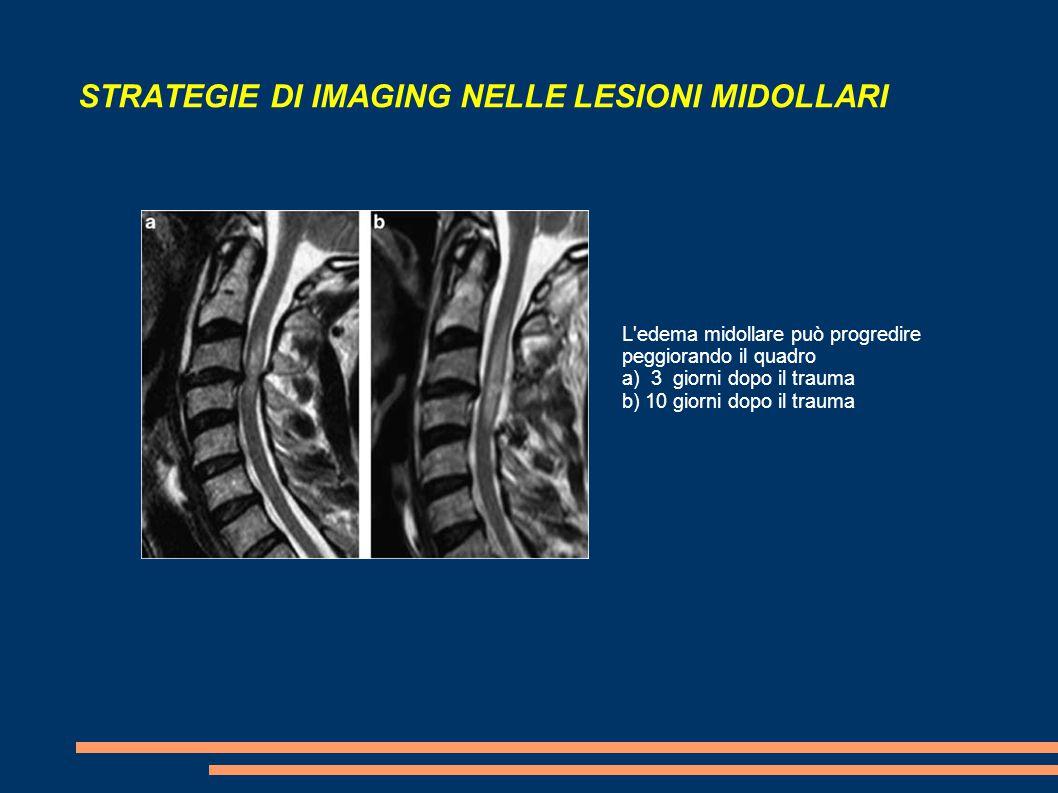 STRATEGIE DI IMAGING NELLE LESIONI MIDOLLARI L'edema midollare può progredire peggiorando il quadro a) 3 giorni dopo il trauma b) 10 giorni dopo il tr