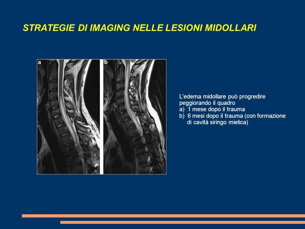 STRATEGIE DI IMAGING NELLE LESIONI MIDOLLARI L'edema midollare può progredire peggiorando il quadro a) 1 mese dopo il trauma b) 6 mesi dopo il trauma