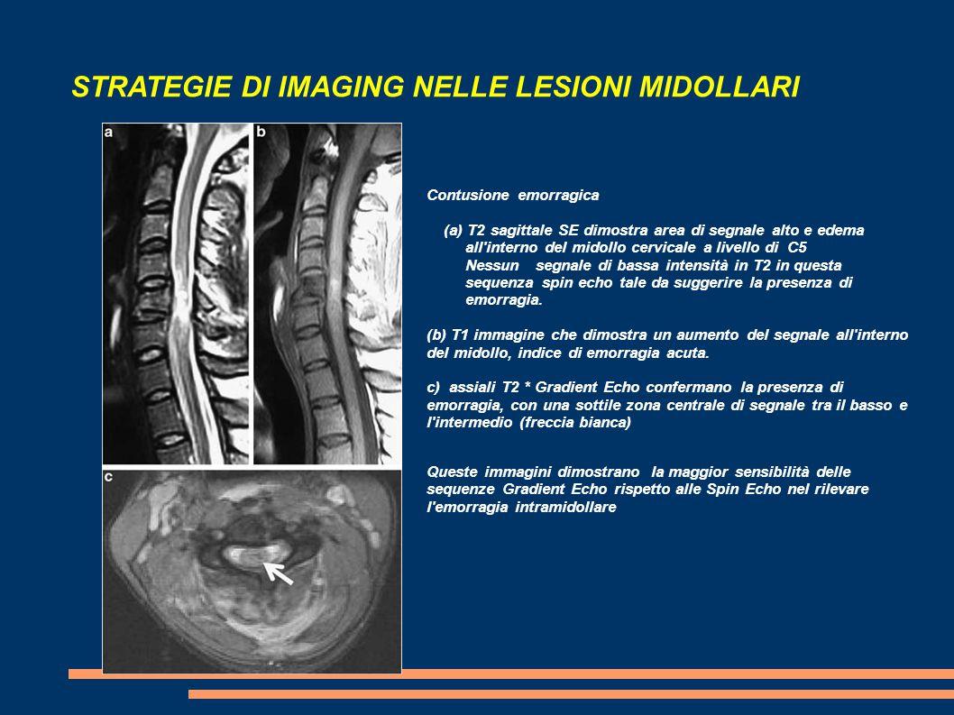 STRATEGIE DI IMAGING NELLE LESIONI MIDOLLARI Contusione emorragica (a) T2 sagittale SE dimostra area di segnale alto e edema all'interno del midollo c