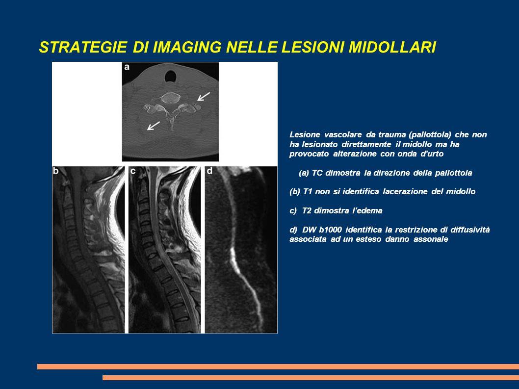 STRATEGIE DI IMAGING NELLE LESIONI MIDOLLARI Lesione vascolare da trauma (pallottola) che non ha lesionato direttamente il midollo ma ha provocato alt