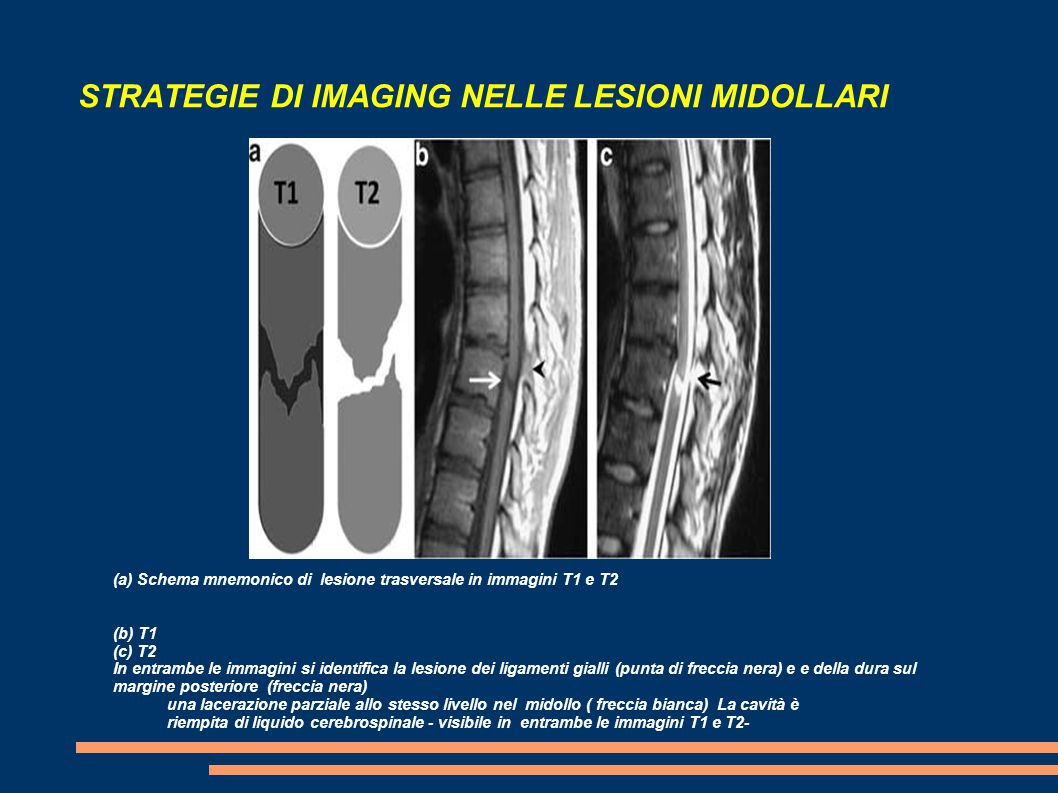 STRATEGIE DI IMAGING NELLE LESIONI MIDOLLARI (a) Schema mnemonico di lesione trasversale in immagini T1 e T2 (b) T1 (c) T2 In entrambe le immagini si