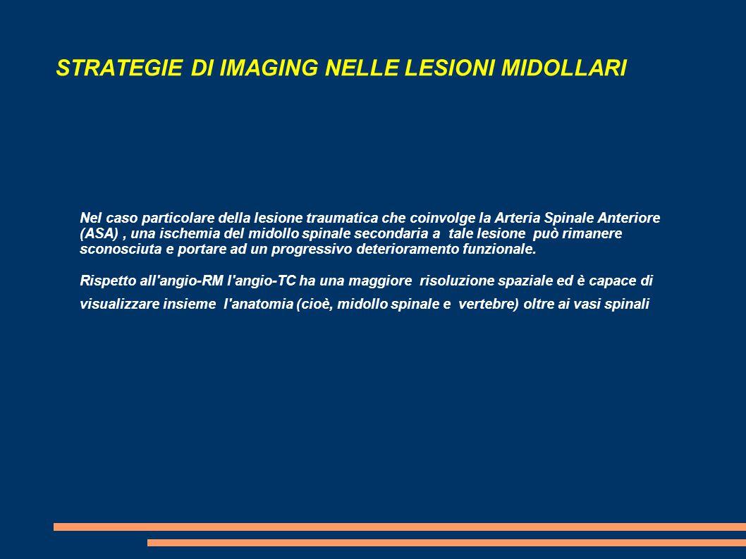 STRATEGIE DI IMAGING NELLE LESIONI MIDOLLARI Nel caso particolare della lesione traumatica che coinvolge la Arteria Spinale Anteriore (ASA), una ische