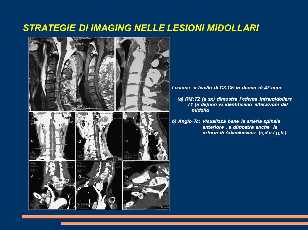 STRATEGIE DI IMAGING NELLE LESIONI MIDOLLARI Lesione a livello di C3-C5 in donna di 47 anni (a) RM:T2 (a sx) dimostra l'edema intramidollare T1 (a dx)
