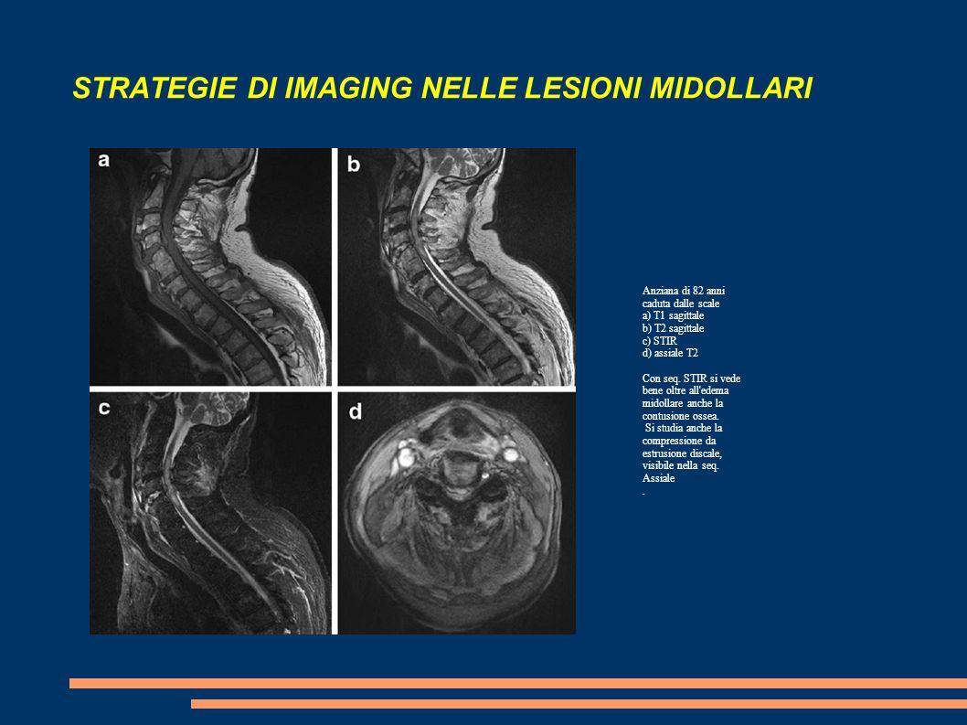 STRATEGIE DI IMAGING NELLE LESIONI MIDOLLARI Anziana di 82 anni caduta dalle scale a) T1 sagittale b) T2 sagittale c) STIR d) assiale T2 Con seq. STIR
