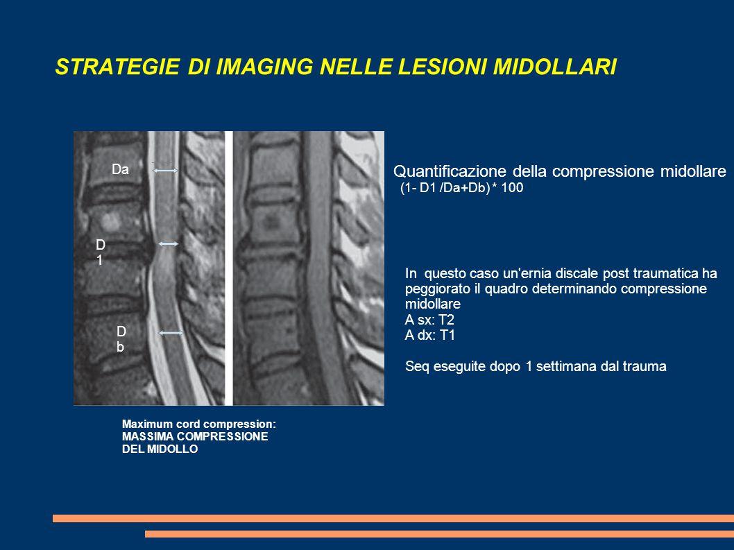 STRATEGIE DI IMAGING NELLE LESIONI MIDOLLARI Maximum cord compression: MASSIMA COMPRESSIONE DEL MIDOLLO Da DbDb D1D1 Quantificazione della compression