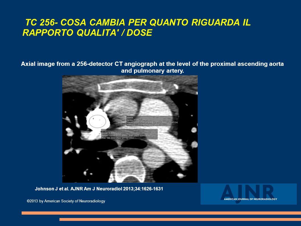 TC 256- COSA CAMBIA PER QUANTO RIGUARDA IL RAPPORTO QUALITA / DOSE Axial image from a 256-detector CT angiograph at the level of the proximal ascending aorta and pulmonary artery.