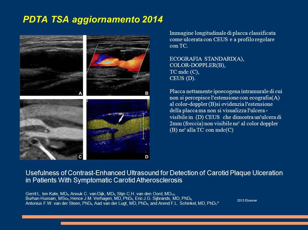 PDTA TSA aggiornamento 2014 Immagine longitudinale di placca classificata come ulcerata con CEUS e a profilo regolare con TC.