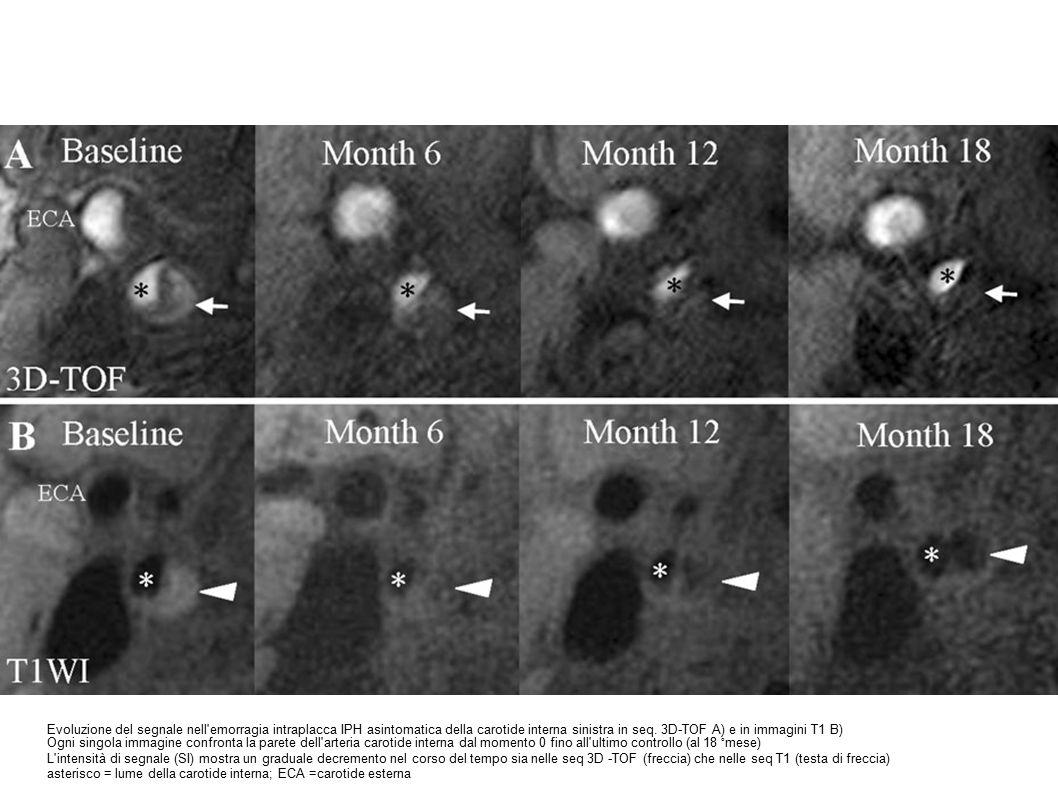 Evoluzione del segnale nell emorragia intraplacca IPH asintomatica della carotide interna sinistra in seq.