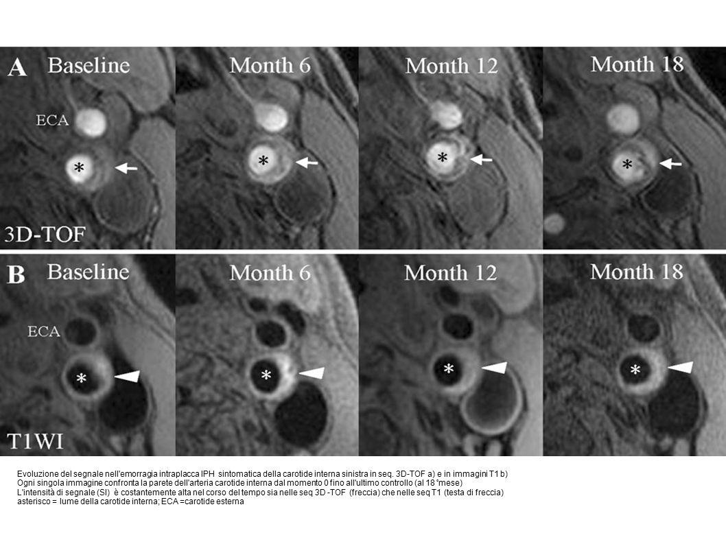 Evoluzione del segnale nell emorragia intraplacca IPH sintomatica della carotide interna sinistra in seq.