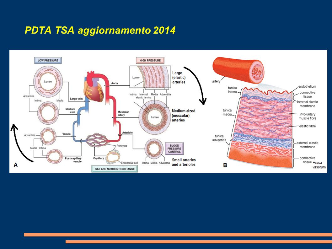 PDTA TSA aggiornamento 2014 Cross-sectional area for the calculation of carotid artery stenosis on computed tomographic angiography (English) By: Carnicelli AP; Stone JJ; Doyle A; Chowdhry AK; Mix D; Ellis J; Gillespie DL; Chandra A, Journal Of Vascular Surgery [J Vasc Surg], ISSN: 1097-6809, 2013 Conclusions: These data support the use of CTA as an accurate method of calculating carotid artery stenosis