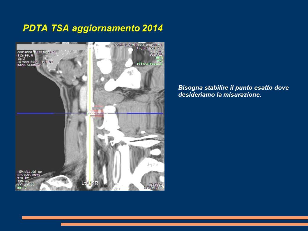 PDTA TSA aggiornamento 2014 Bisogna stabilire il punto esatto dove desideriamo la misurazione.