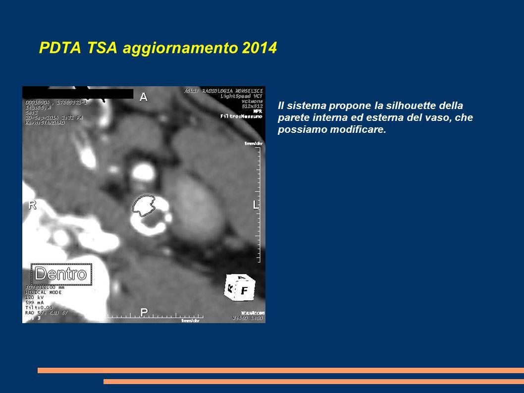 PDTA TSA aggiornamento 2014 Il sistema propone la silhouette della parete interna ed esterna del vaso, che possiamo modificare.
