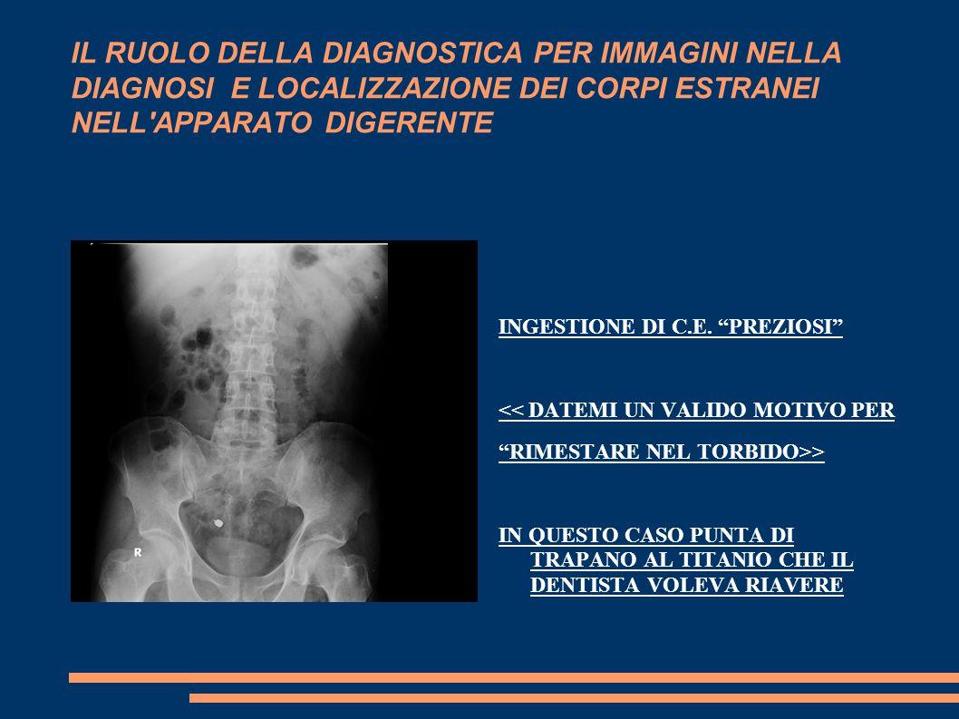 IL RUOLO DELLA DIAGNOSTICA PER IMMAGINI NELLA DIAGNOSI E LOCALIZZAZIONE DEI CORPI ESTRANEI NELL APPARATO DIGERENTE INGESTIONE DI C.E.