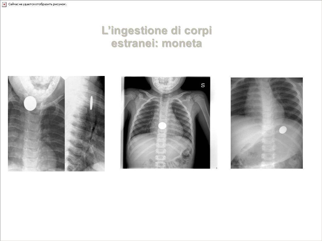 URGENZA VERAURGENZA DIFFERITA NON E' UN'URGENZA L'ingestione di corpi estranei: moneta