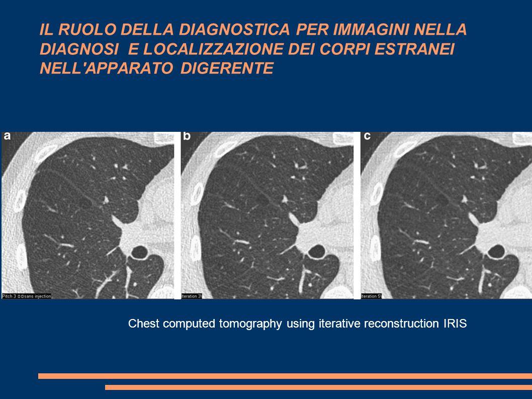 IL RUOLO DELLA DIAGNOSTICA PER IMMAGINI NELLA DIAGNOSI E LOCALIZZAZIONE DEI CORPI ESTRANEI NELL APPARATO DIGERENTE Chest computed tomography using iterative reconstruction IRIS