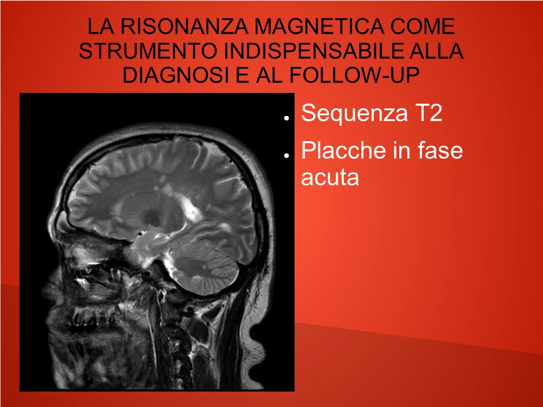 LA RISONANZA MAGNETICA COME STRUMENTO INDISPENSABILE ALLA DIAGNOSI E AL FOLLOW-UP ● Sequenza T2 ● Placche in fase acuta